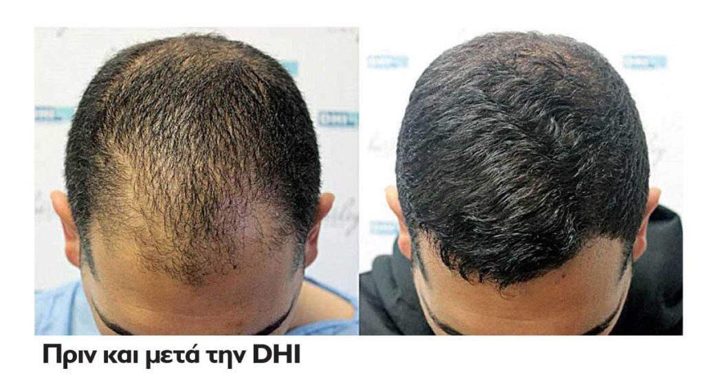 Μύθοι και αλήθειες για τη Μεταμόσχευση Μαλλιών • The B. magazine 2da1131b04c